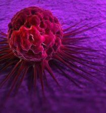 7. Inilah Berbagai Metode Untuk Menangani Kasus Kanker